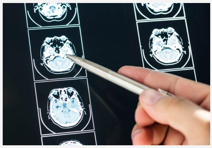 Foto mostra imagens de exames de imagens com o médico apontando uma caneta para uma das imagens